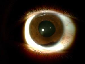 ce8c8d4ac De acordo com a Organização Mundial de Saúde (OMS), ocorrem, por ano, cerca  de 55 milhões de traumatismos oculares que restringem as atividades por  pelo ...